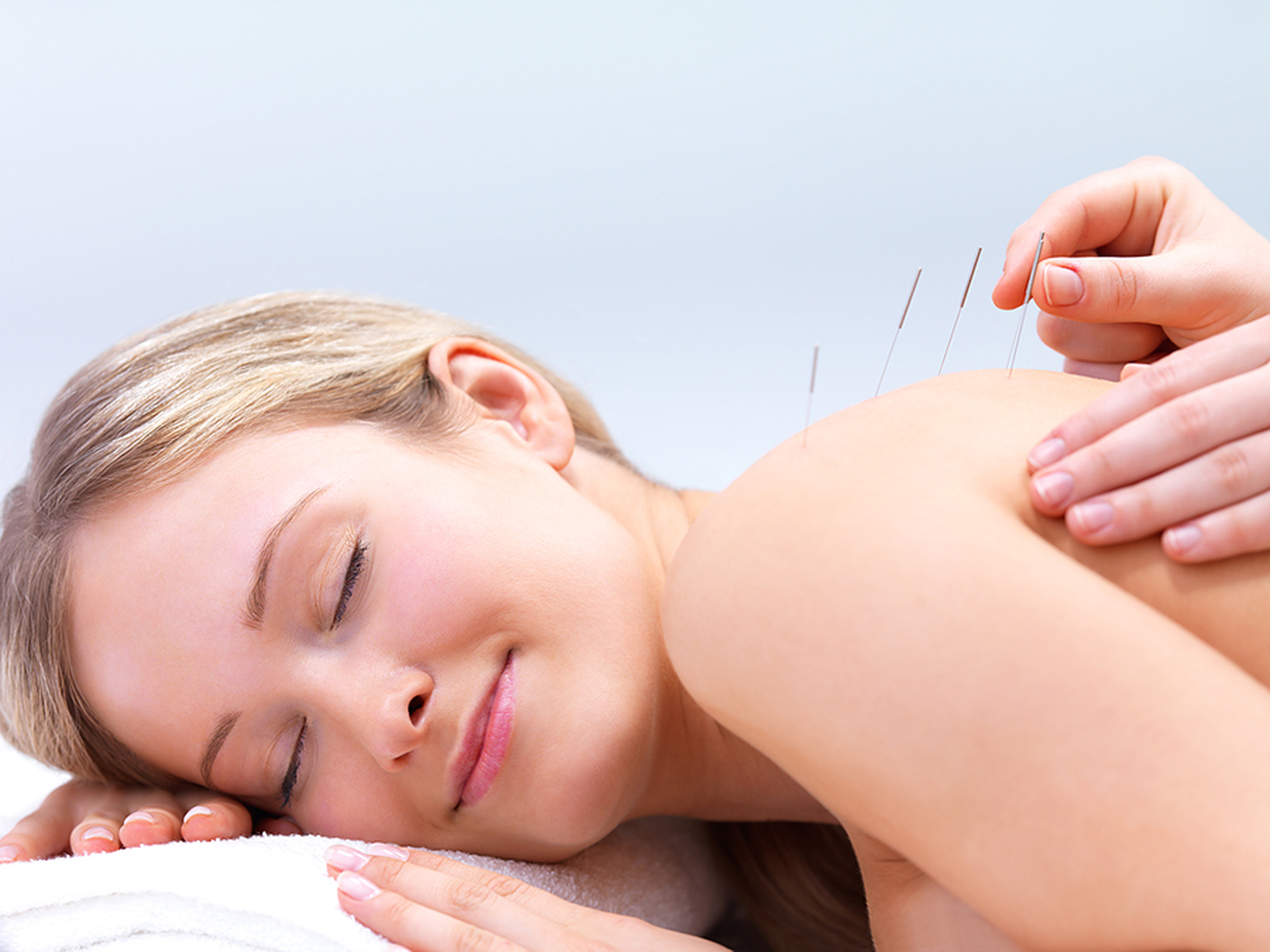 Woman getting dry needling