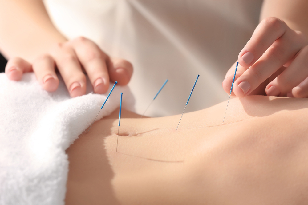 Woman getting acupuncture for infertility